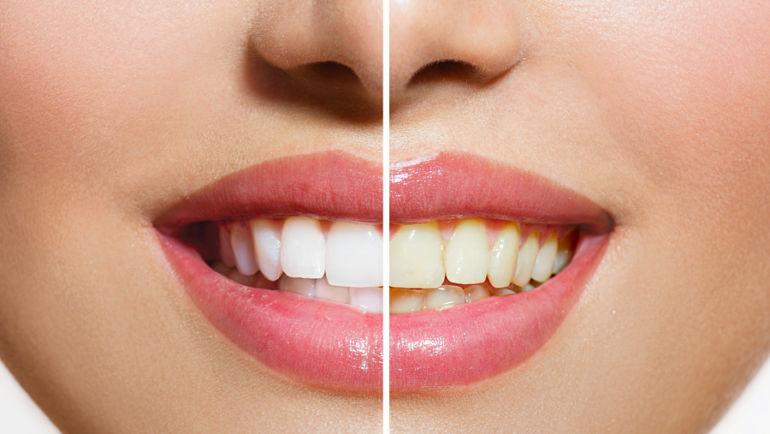 Профессиональное отбеливание зубов: за или против