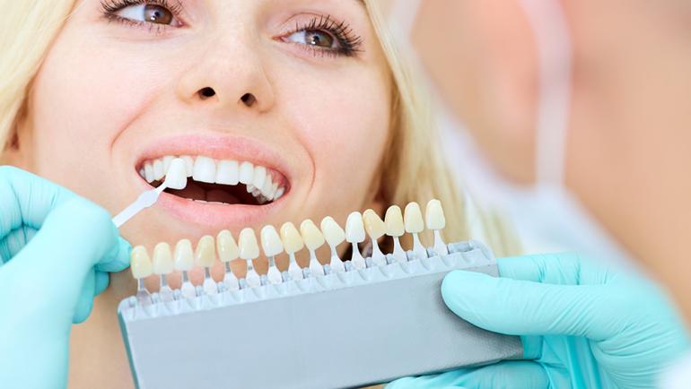 Реставрация в современной стоматологии