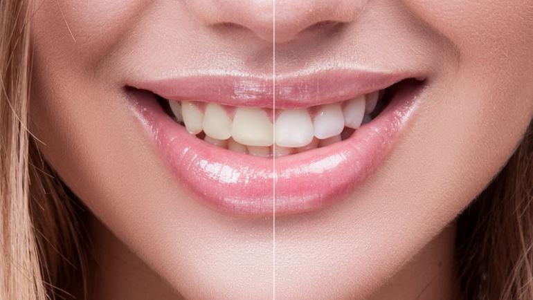 Opalescence – новая технология качественного и быстрого отбеливания зубов