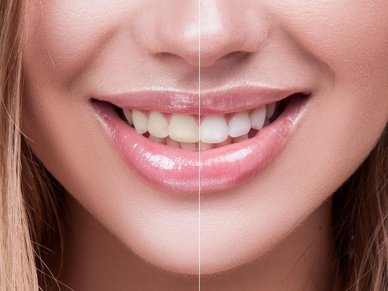 tooth-whitening.jpg