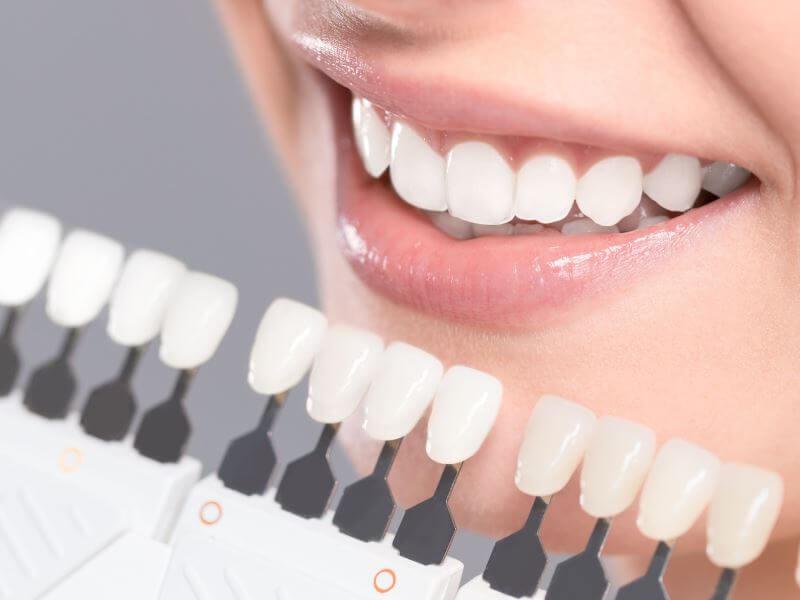 Виниры в современной стоматологии