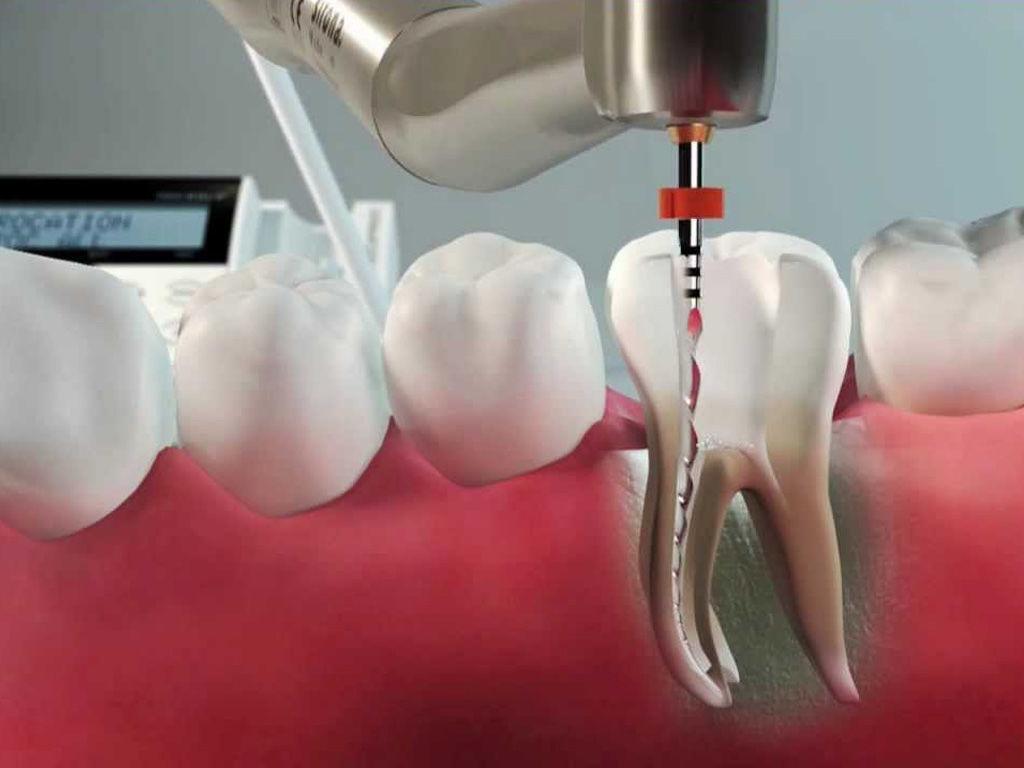 Депульпирование зубов