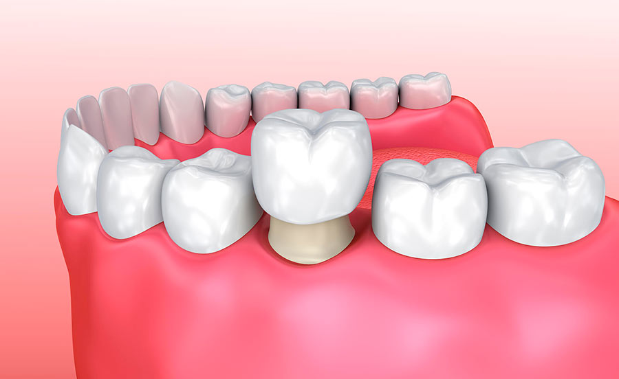 Какая коронка лучше для жевательных зубов