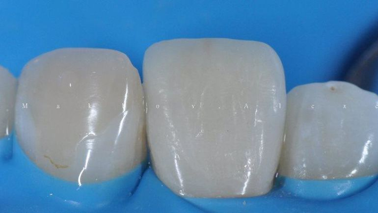 Методика прямого восстановления зуба винирами